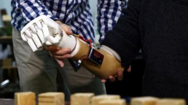 prosthetic-arm-624x351